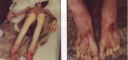 """David Nebreda, """"Les blessures aux pieds sont déjà refermées"""""""