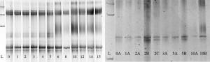 Utklipte DNA-bånd