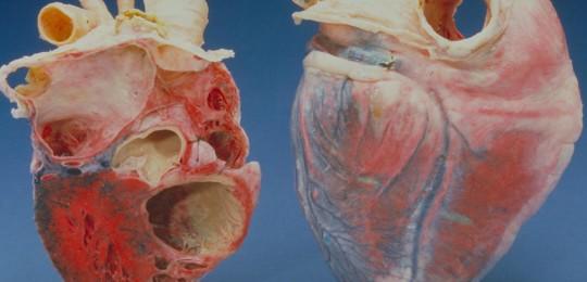 Digital simulering av hjertet er viktig for å utvikle nye behandlingsmetoder for hjertesykdom. Illustrasjon: Flick / Carolina biological supply company