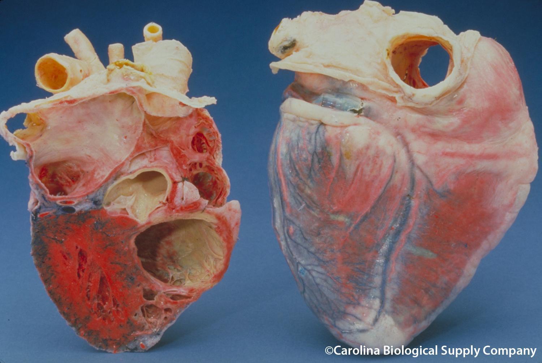 Digital simulering av hjertet er viktig for å utvikle nye behandlingsmetoder for hjertesykdom. Illustrasjon: Flickr / Carolina biological supply company